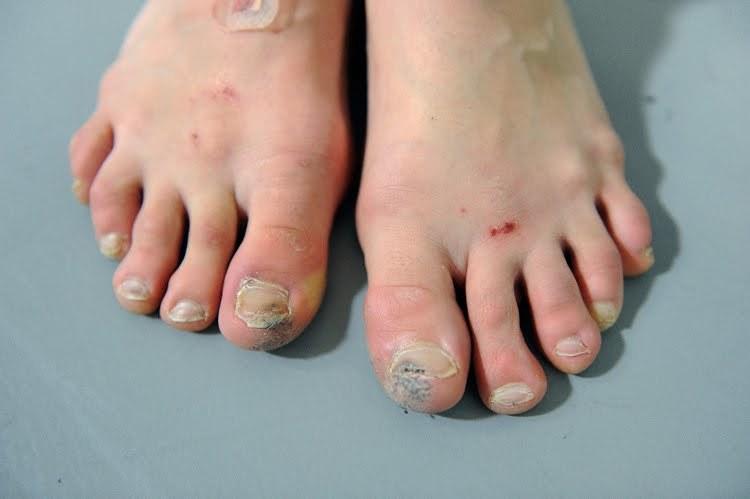 łamliwe paznokcie u stóp /© Photogenica