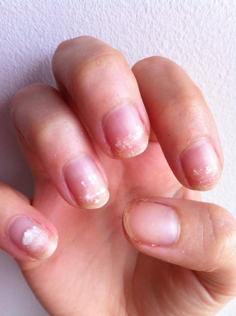 łamliwe paznokcie /© Photogenica