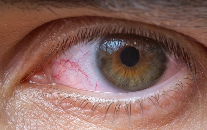 Lampy bakteriobójcze mogą uszkadzać oczy /123RF/PICSEL
