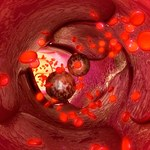 Laser do namierzania i niszczenia nowotworów