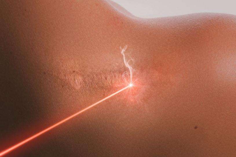 Laseroterapia /©123RF/PICSEL