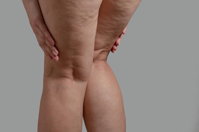 Latem nogi puchną ci na potęgę? Dieta bogata w ogórki pomoże pozbyć się nadmiaru wody z organizmu /123RF/PICSEL