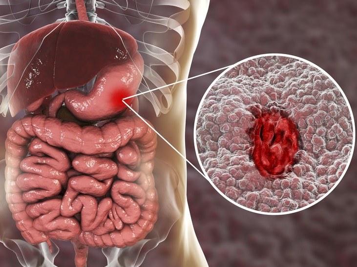Leczenie nieżytu żołądka /©123RF/PICSEL