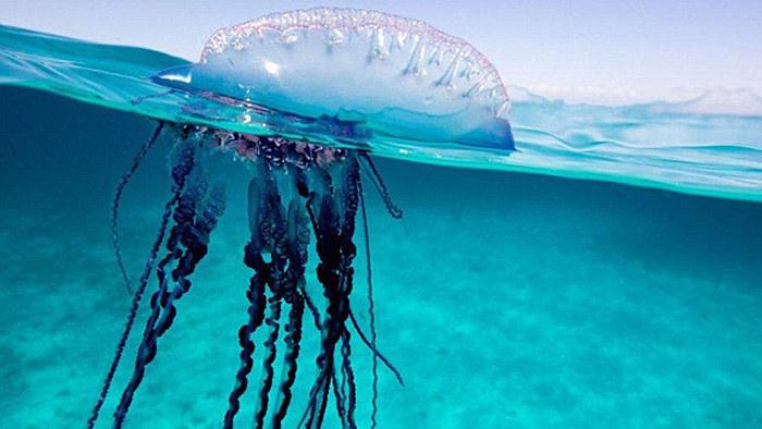 Leczenie poparzeń przez meduzę /© Photogenica