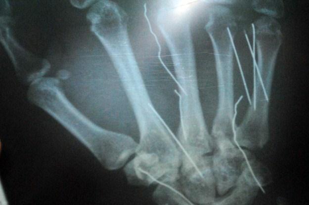 Leczenie uszkodzeń kości od teraz będzie łatwiejsze? /AFP