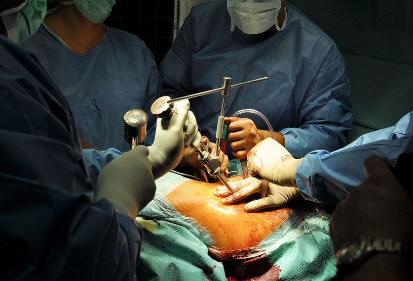 Lekarz miał zachować kości od ponad 5,2 tys. pacjentów, których operował (zdj. ilustracyjne) /123RF/PICSEL