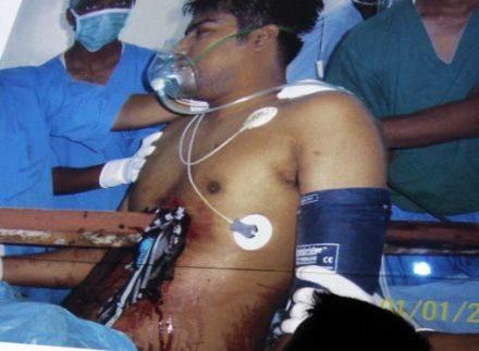 Lekarze byli zaskoczeni, tym, że 23-latek przeżył operację /AFP