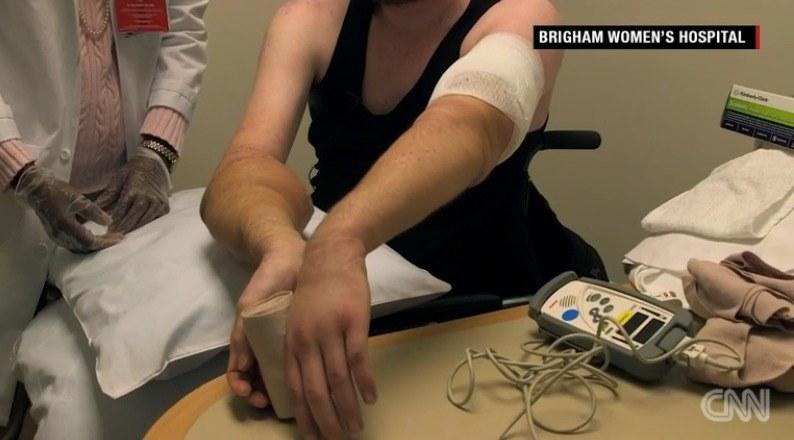 Lekarze chwalą postępy, jakie robi pacjent po podwójnym przeszczepie, źródło: CNN /INTERIA.PL