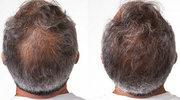 Lekarze przerażeni szybkością działania nowej kuracji przeciw wypadaniu włosów