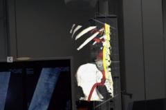 Lekarze w trakcie operacji wykorzystali gogle rozszerzonej rzeczywistości