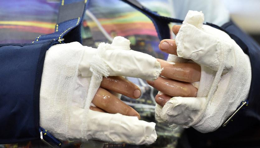 Lekarze z Krakowa przyszyli obie dłonie 24-latkowi