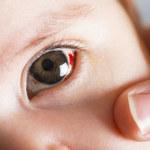 Letnie zagrożenia dla oczu