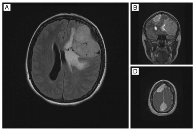 Liczne oponiaki wykryte w mózgu 54-letniej pacjentki /materiały prasowe