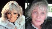 Linda Evans: kiedyś była gwiazdą, dziś stawia czoła ciężkiej chorobie