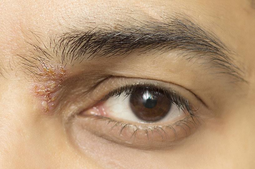 Liszaj rumieniowaty pojawia się na skórze w postaci okrągłych blizn lub wysypek w kolorze brunatno-czerwonym w okolicy nosa, owłosionej skóry głowy i na powierzchni dłoni /123RF/PICSEL