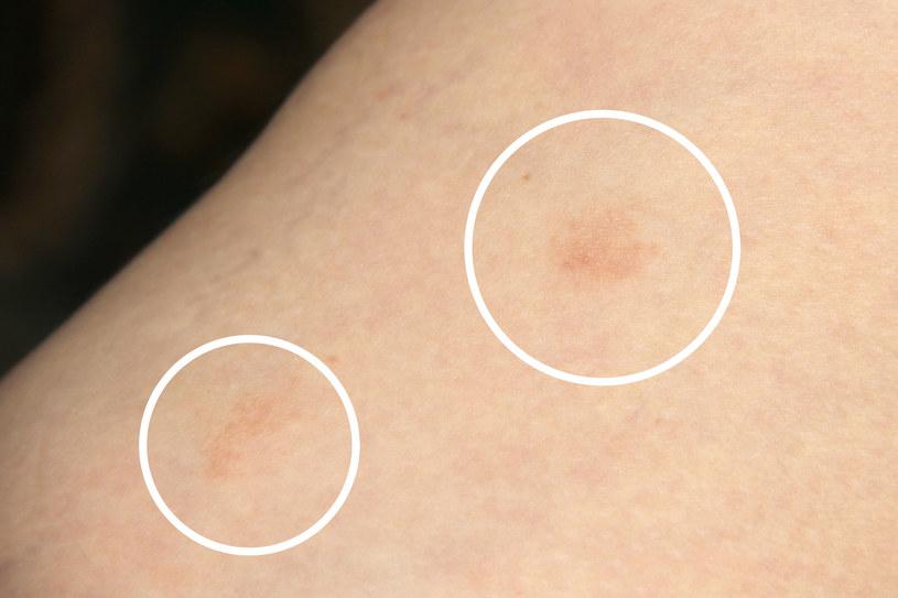 Liszaj to przewlekła choroba skóry i paznokci, której towarzyszy silny świąd /123RF/PICSEL