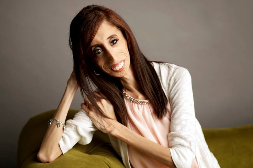 Lizzie Velasquez, oficjalne zdjęcie z jej facebookowego profilu /Internet