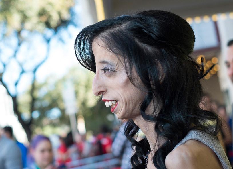 Lizzie Velasquez /Getty Images
