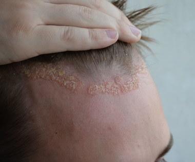 Łojotokowe zapalenie skóry: Przyczyny, objawy i leczenie