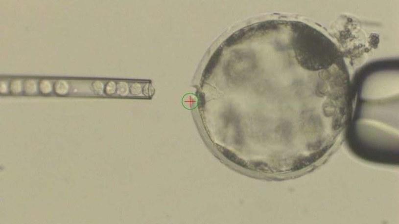 Ludzkie komórki macierzyste wprowadzono do zapłodnionej komórki jajowej owcy /materiały prasowe
