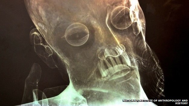 Ludzkie zęby widać na prześwietleniu, fot. National Institute of Anthropology and History /