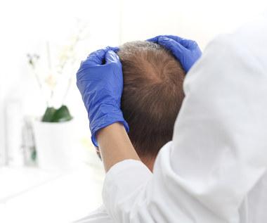 Łysienie androgenowe dotyczy i mężczyzn, i kobiet. Włosy tracą nawet nastolatkowie