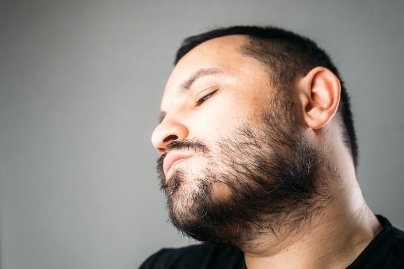 Łysienie plackowate może objawiać się także na brwiach, brodzie lub w okolicach intymnych /123RF/PICSEL