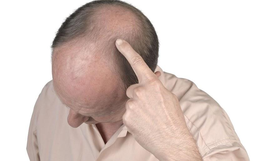 Łysienie to jeden z największych problemów mężczyzn /123RF/PICSEL