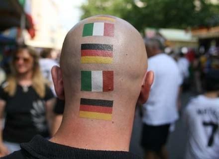 Łysina nie zna granic - jest ponadnarodowa... /AFP
