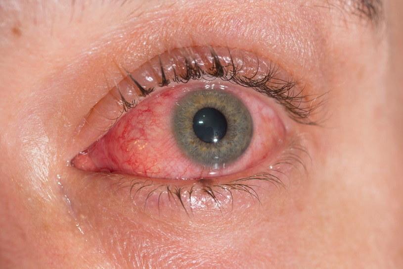 Łzawiące i zaczerwienione oczy to objaw, którego nie wolno bagatelizować /123RF/PICSEL