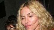 """""""Madonna stanowi dobry przykład odmłodzenia twarzy"""""""
