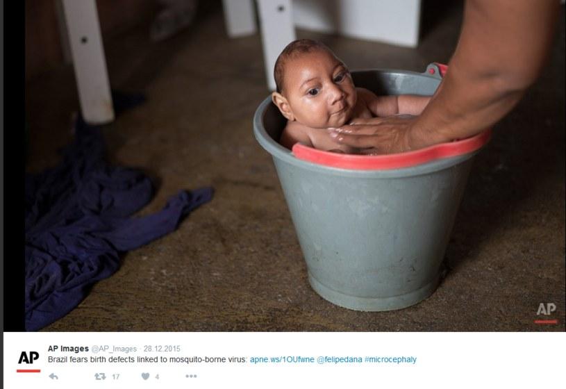 Maluch cierpiący na mikrocefalię /Twitter