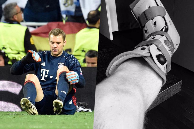 Manuel Neuer i jego kontuzjowana noga /AFP