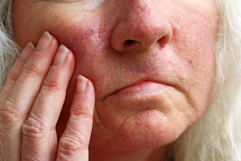 Maść kasztanowa może pomóc na zaczerwienioną skórę twarzy, ale nie tylko /123RF/PICSEL