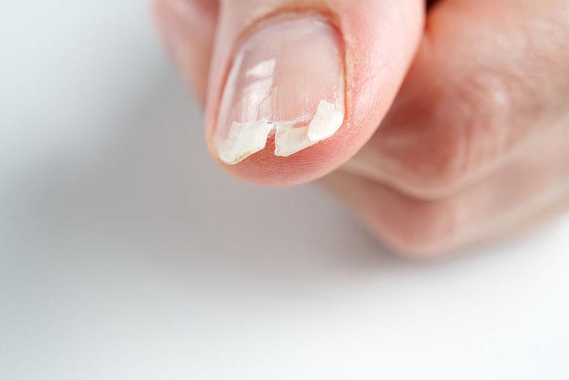 Masło shea pomoże wzmocnić i nabłyszczyć paznokcie /123RF/PICSEL