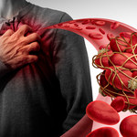 Mechanizm krzepnięcia krwi - ważny przełom w czasach pandemii