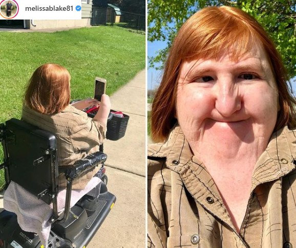 Melissa Blake stara się wspierać osoby niepełnosprawne i wzmacnia ich poczucie własnej wartości /Instagram