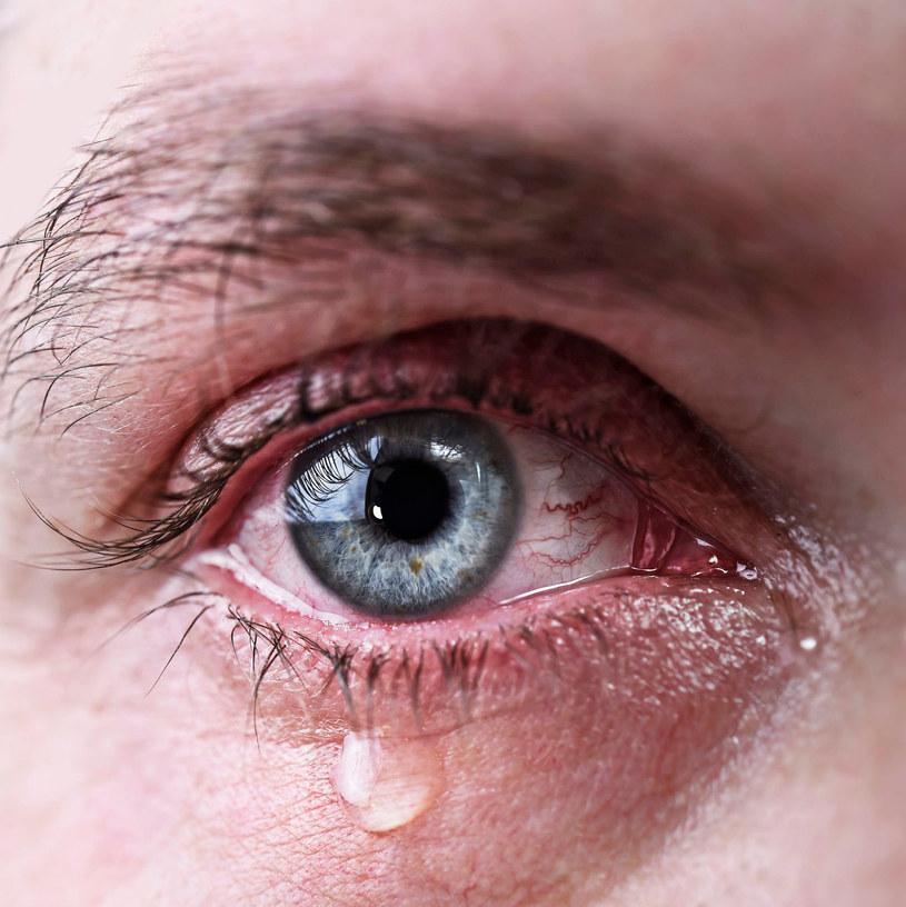 Metody na łzawiące oczy powinny być dostosowane do przyczyn problemu /123RF/PICSEL