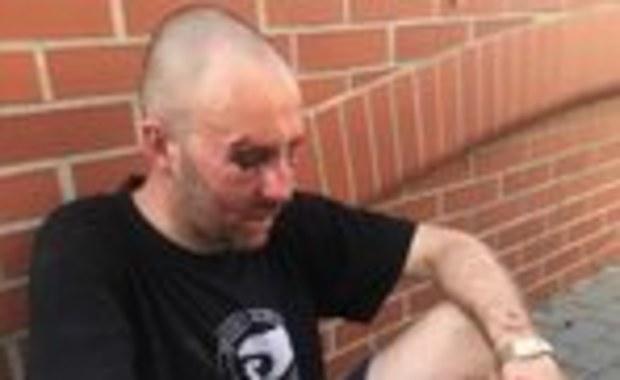 Mężczyzna oskarżony o pobicie Przemysława Witkowskiego zostanie w areszcie