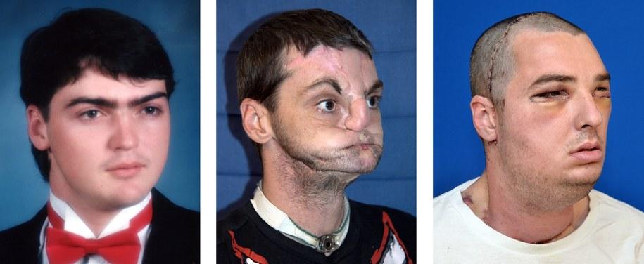 Mężczyzna przed i po operacji /UNIVERSITY OF MARYLAND MEDICAL CENTER /PAP/EPA