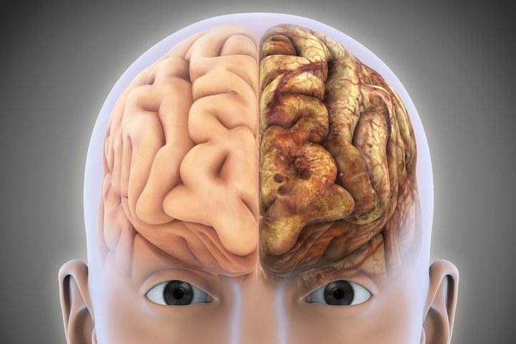 Mgła mózgowa może być objawem poważnych chorób, np. alzheimera /123RF/PICSEL