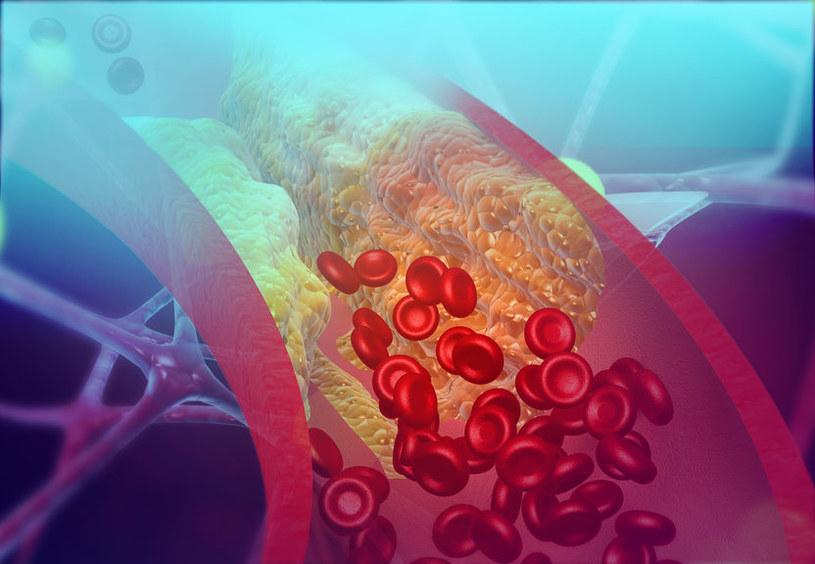 Miażdżyca to częsta przyczyna zawału serca /123RF/PICSEL