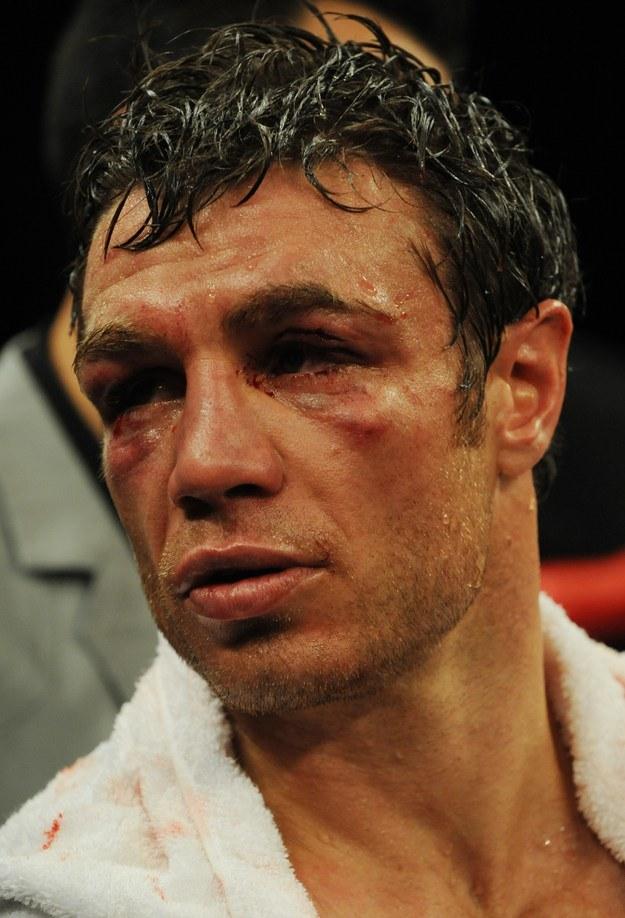 Michael Katsidis, australijski bokser /AFP