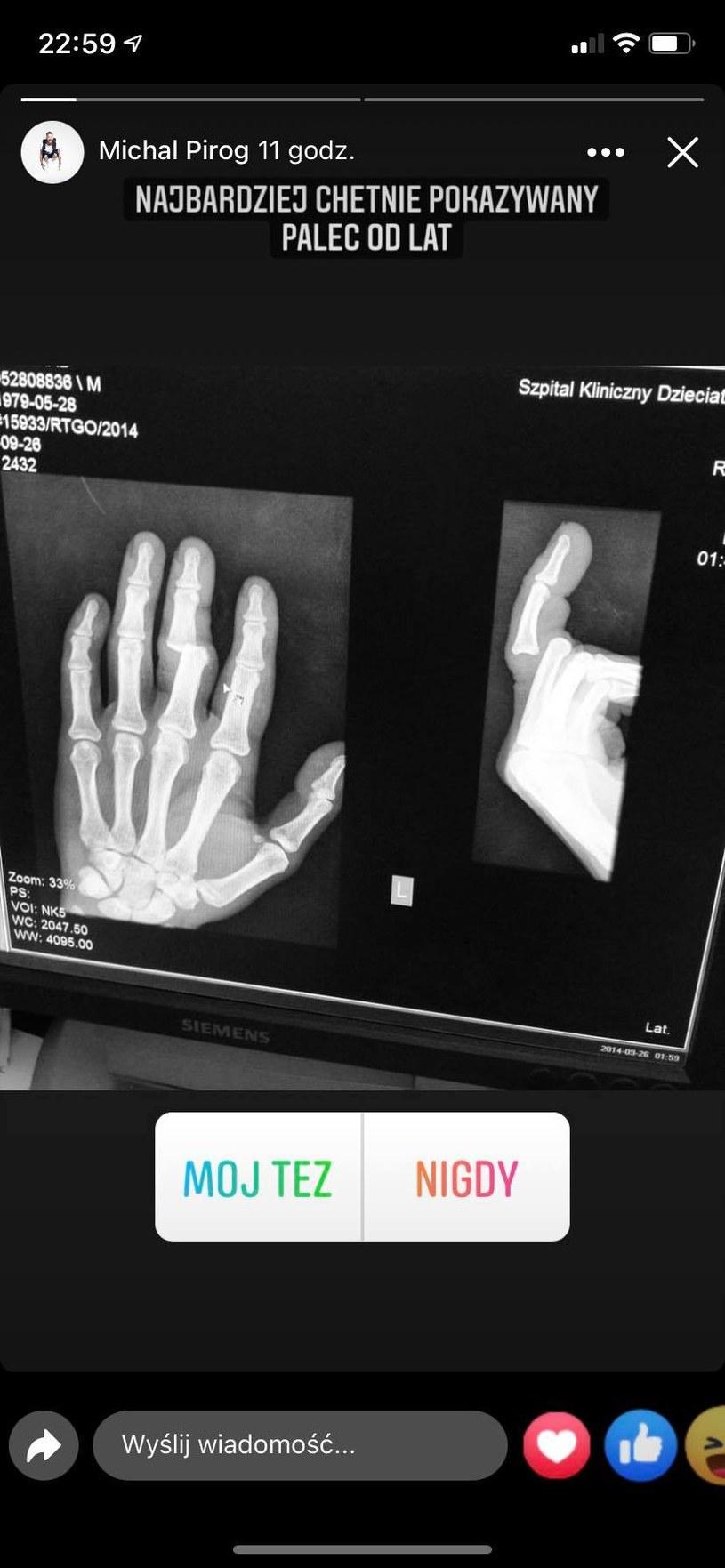 Michał Piróg w szpitalu, fot. https://www.instagram.com/michalpirog/ /Instagram