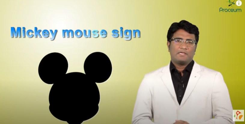 """""""Mickey Mouse sign"""" to istniejący termin w medycynie /YouTube"""