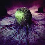 Mielofibroza - rzadki nowotwór krwi atakuje Polaków