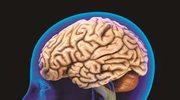 Migrena dobrze wpływa na pamięć