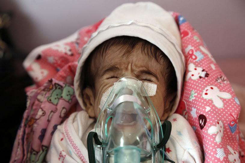 Miliony jemeńskich dzieci cierpią głód /Mohammed Hamoud/Getty Images /Getty Images