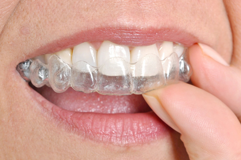 Sebelum Menerapkan Cara Memutihkan Gigi Secara Instan Berikut