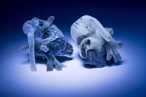 Modele serca 3D przyszłością kardiochirurgii